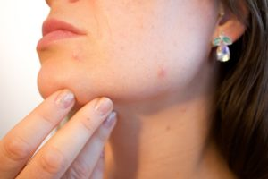 Woman with acne on her face touching her face