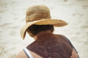 Woman sitting on a beach in the sun with a sunhat on