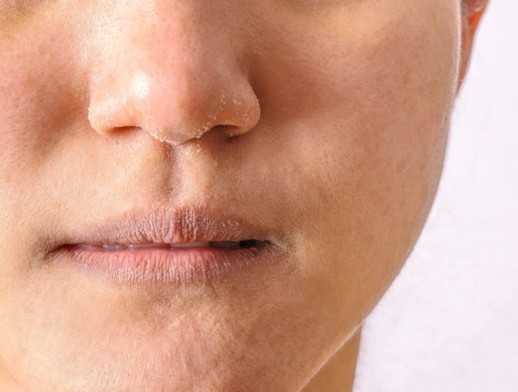 close up of a person with dry skin on their lips and nose.