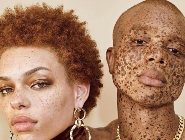 close up of two models with freckled skin.