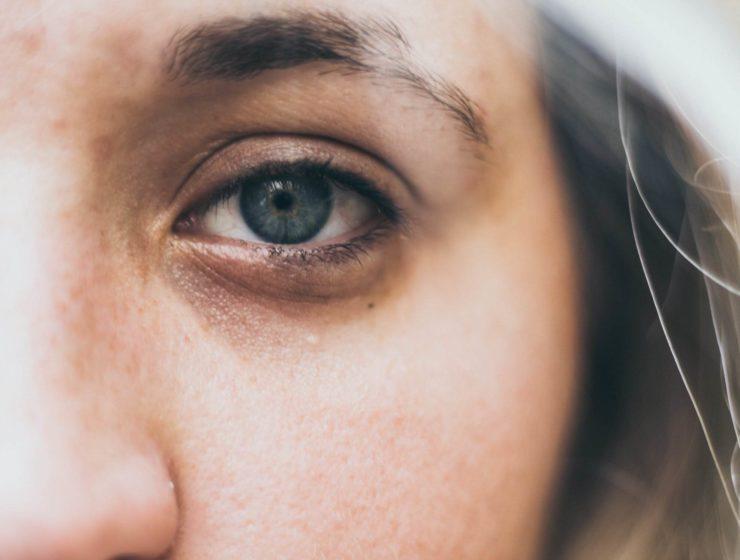 Woman with dark circles under her eyes