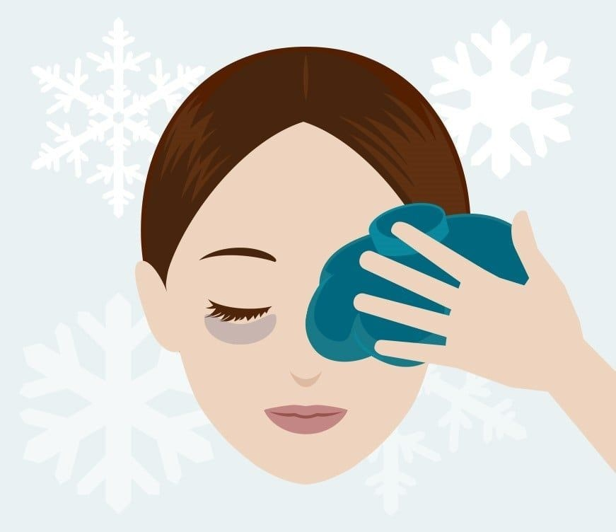 cartoon graphic of a woman holding a cold compress to her eye.