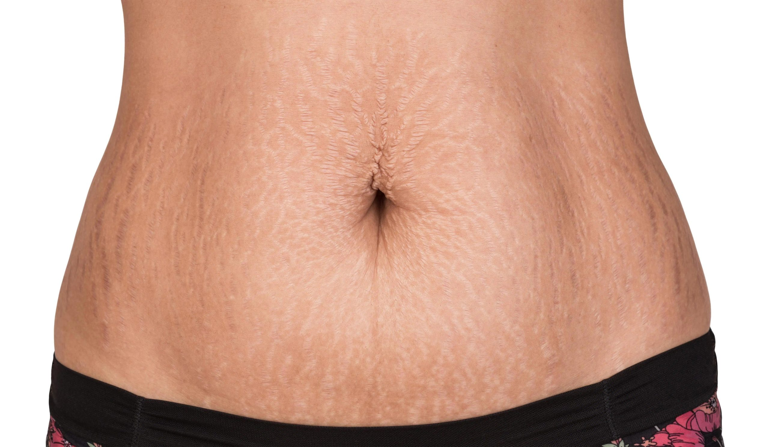 close up of a persons stomach with scarring.
