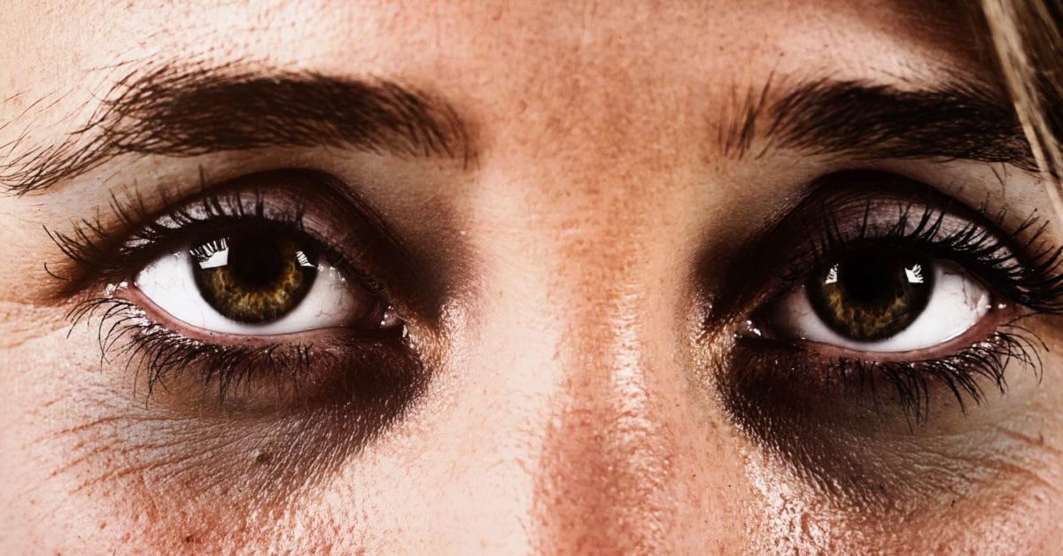 close up of persons face with dark circles under their eyes.