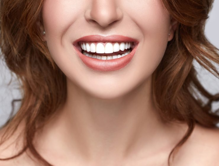a close up of a woman smiling, showcasing her bright white teeth.