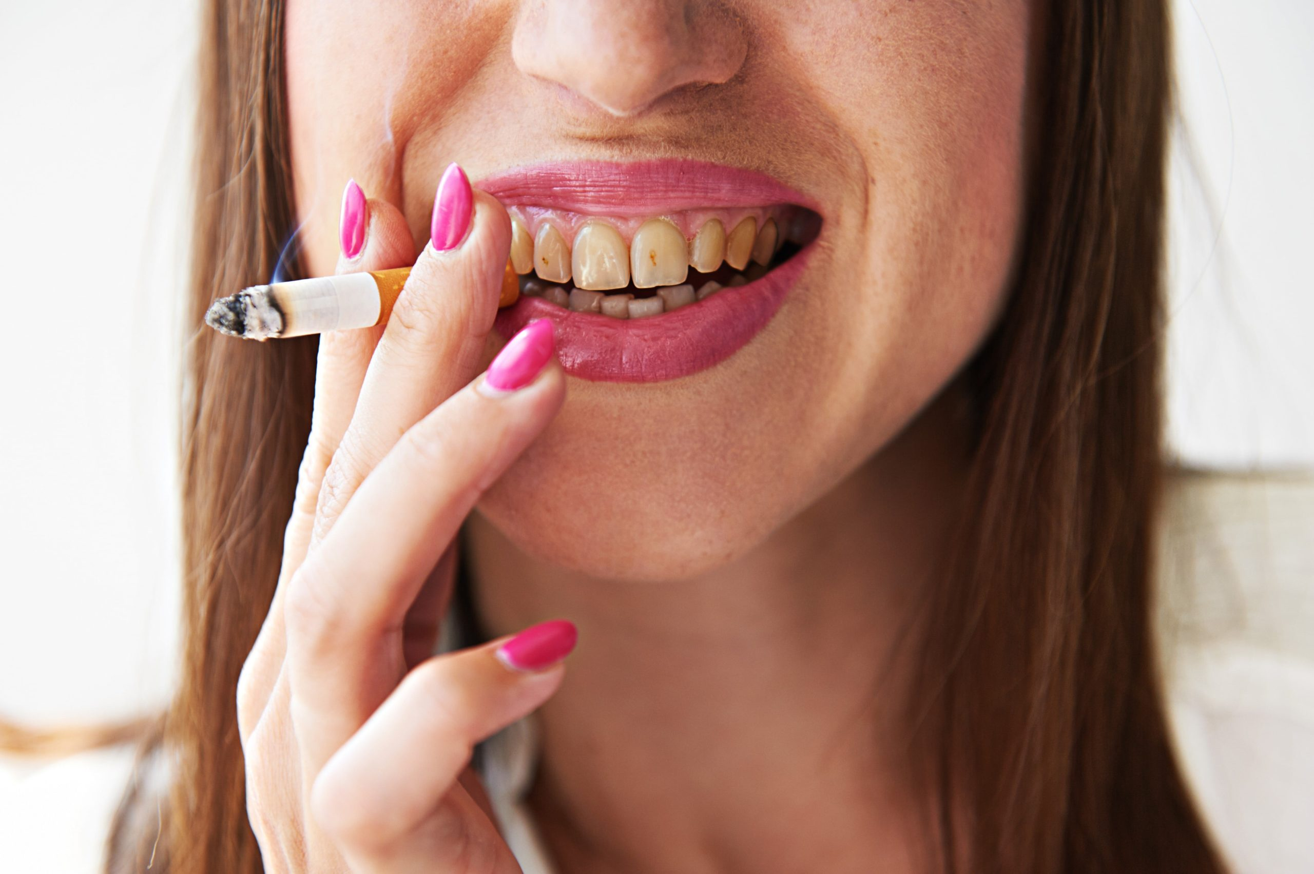 woman pictured smiling, whilst smoking a cigarette, showincasing her yellow teeth.