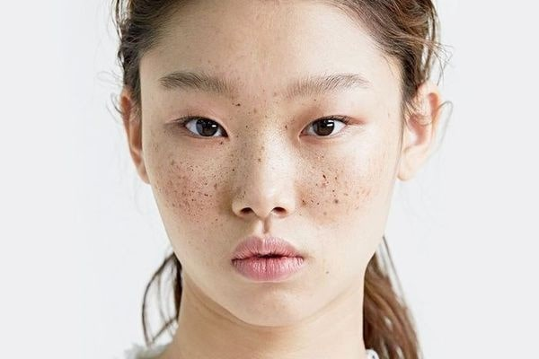 close up of a woman showing her freckles.