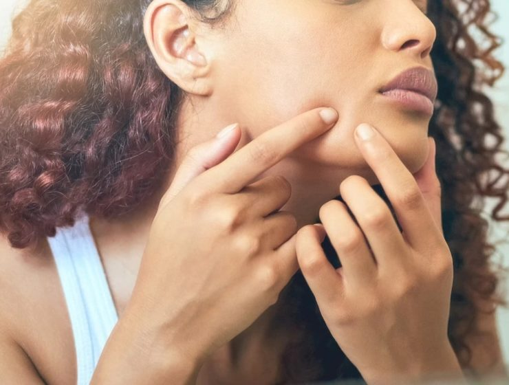 woman close up picking her face/clogged pores.